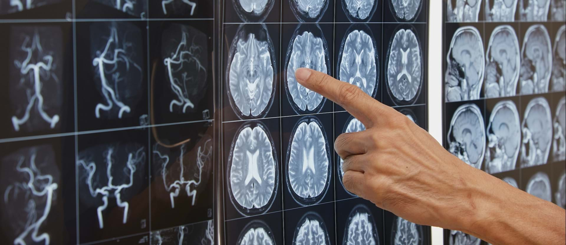 Hjernen Neurologi Scanning Web