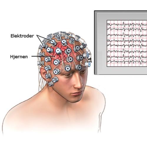 EEG-hætte